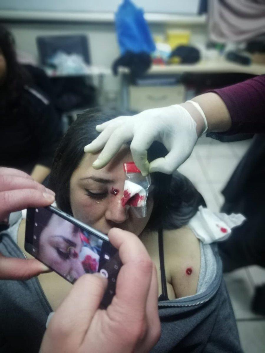 Cynthia Herrera, estudiante de obstetricia herida en el rostro con perdigones disparados por general Gajardo