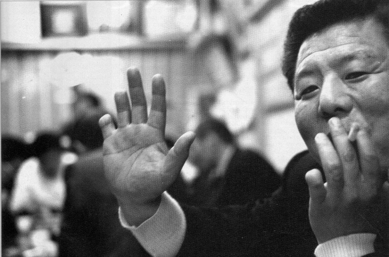 Los integrantes de la yakuza se cortan las falanges de los dedos de sus manos para conseguir el perdón por sus errores.