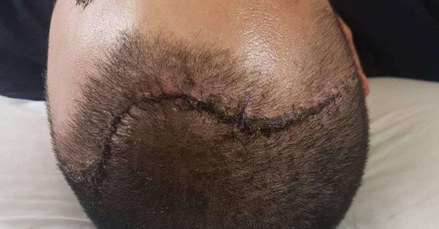 Foto de Juan Carlos Pereira, operado por un golpe de lacrimógena en su cráneo